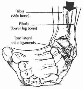 sprain diagram