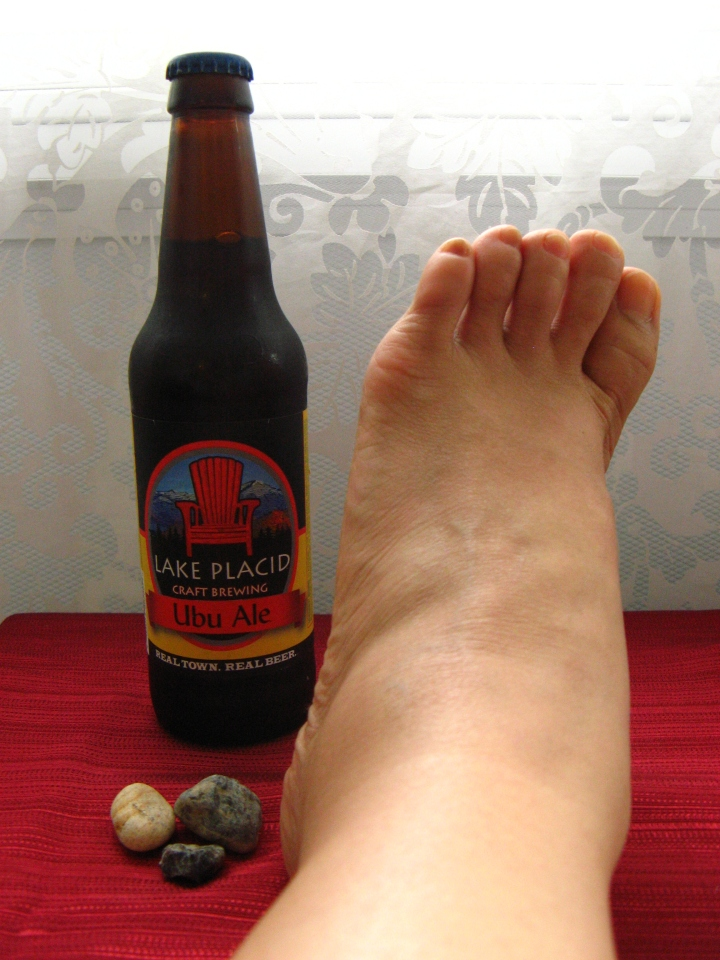 Adirondacks souvenirs -- local microbrew, pebbles from Lake Colden and an angry ankle